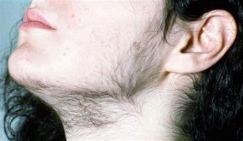 excess pubic hair hirsutism in women genital area hairstyle gallery