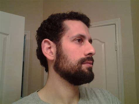 1 5 mm beard length 1 5 mm beard length 1 5 mm beard length