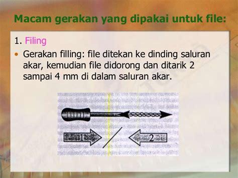 K File Dentsply 25mm Untuk Konservasi Gigi endodontic 8