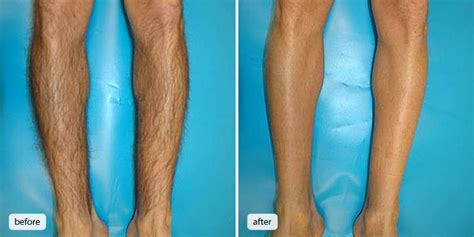 hair removal before amp after gallery face the future