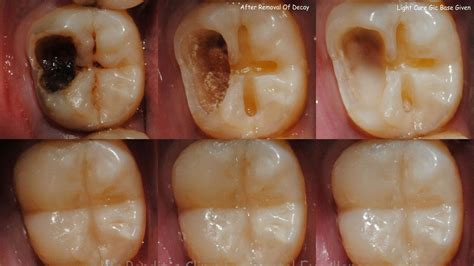 how to heal tooth decay and cavities using this