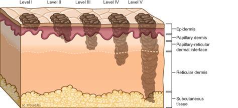 layer of fat on back of head skin cancer anatomy headandneckcancerguide org