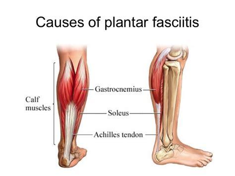 Plantar Fasciitis Presentation What Causes Planters Fasciitis