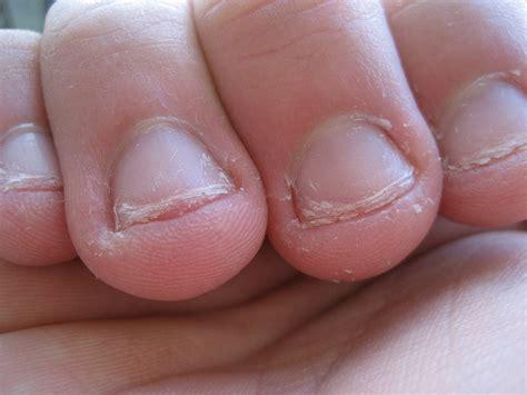chewing nails onychophagia nail biting