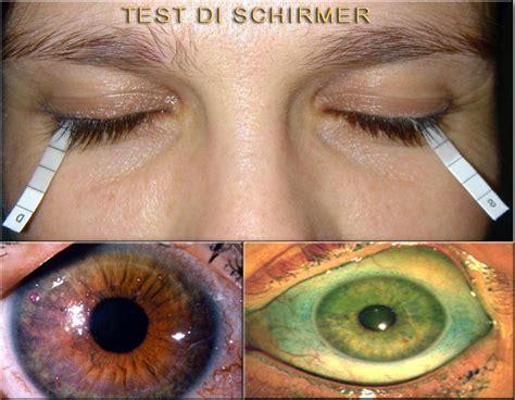 test di schirmer l occhio secco dott carlo benedetti