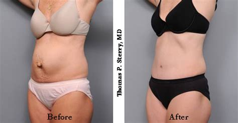 pregnancy after classical c section tummy tuck exles from a new york city plastic surgeon
