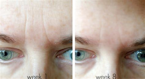 tria beauty laser before and after pictures tria age defying laser review update week 8 beautiful