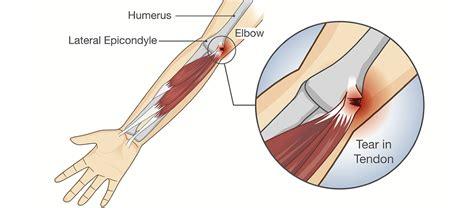 infiammazione gomito interno dolore al gomito ed esercizi per la schiena project invictus