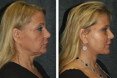 mini face lift new york facial plastic surgery mini face lift face lift
