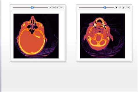 wolfram and mathematica solutions for imaging