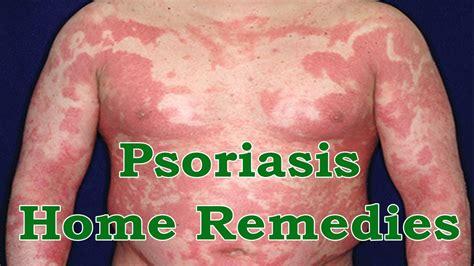 psoriasis home remedies herbs healthy