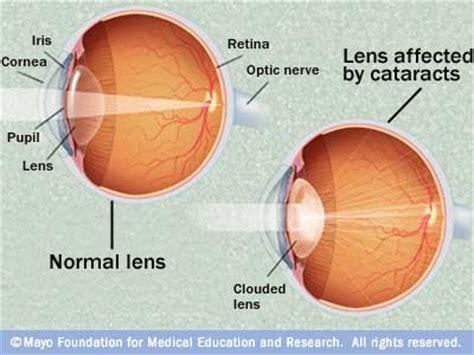 cataract surgery diagram american eye institute