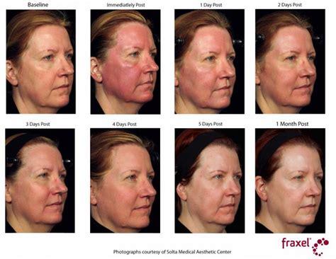 image gallery healing from laser resurfacing