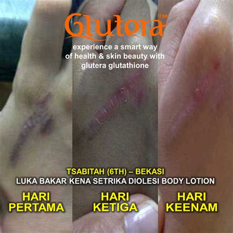 Collagen Glutera produk asli glutera indonesia