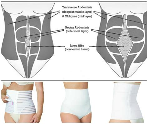 Why Back After C Section by Diary Of A Fit Mommywhy I Wore A Postpartum Girdle The