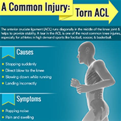 torn acl home treatment a common injury torn acl orange county orthopedic center