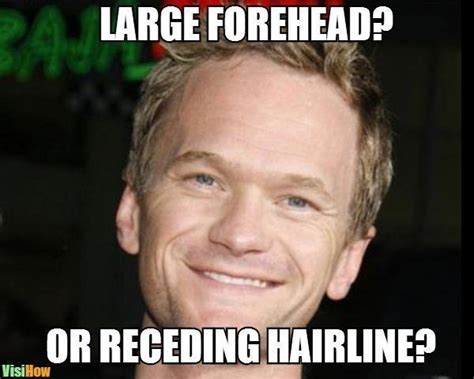 Receding Hairline Meme - receding hairline meme 28 images twitter reacts to the