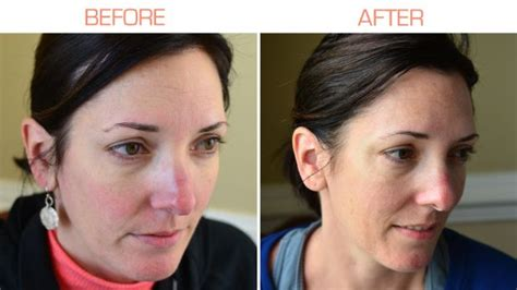 tria anti aging 28 best images about tria age defying laser before after