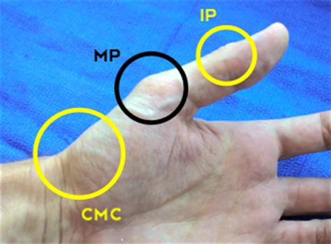 bump and grind mp joints of the thumb language of hand and arm surgery series