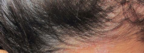 psoriasis cuero cabelludo psoriasis cuero cabelludo gu 237 a tu cuerpo