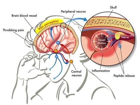 farmaco per mal di testa 8 modi per alleviare il mal di testa senza farmaci