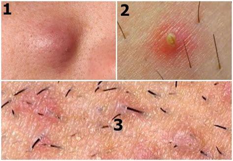 ingrown hair pus filled ingrown underarm hair treatment prevention more