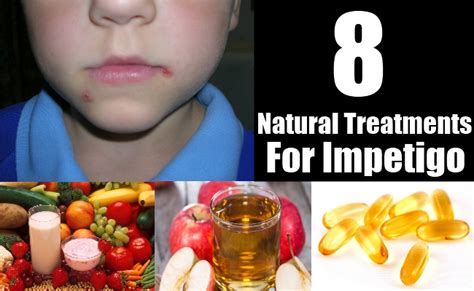8 treatments for impetigo how to cure impetigo