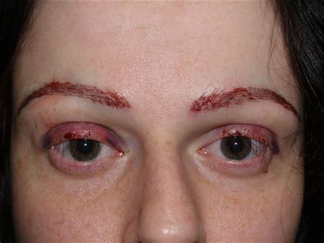 Eyelash Transplant Surgery Becames Popular 2 by Image Gallery Minoxidil Eyebrows