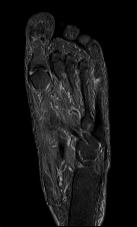 Foot Anatomy Mri