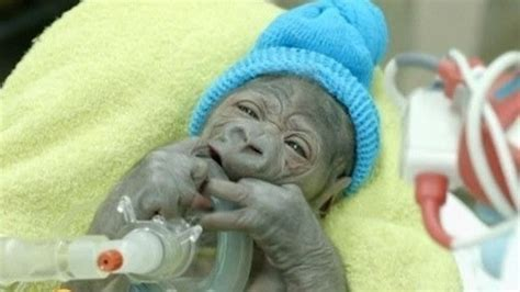 pneumonia after c section amazing stories around the world baby gorilla delivered