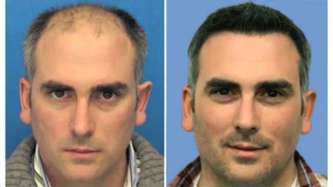 hair transplant cost in tianjin china hair transplant techniques and surgery is it really