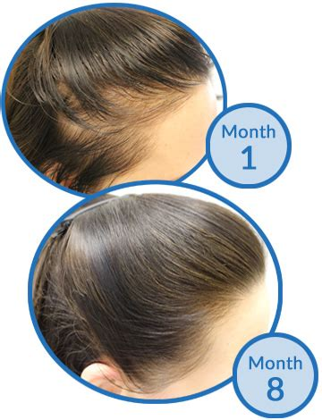 nioxin female pattern hair loss systematic review confirms which hair loss treatments work