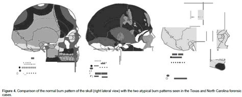 pattern recognition ncsu recognition of atypical burn patterns and pre cremation