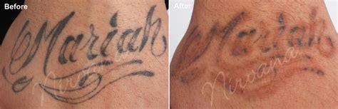 tattoo after removal 28 laser removal 1st session before and