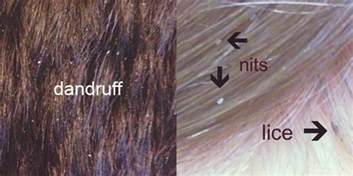 lice vs dandruff nits scalp what s the difference