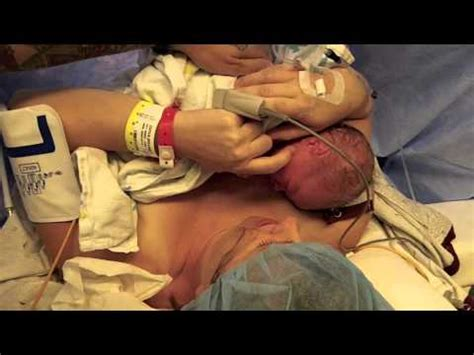 watch a c section video c section natural skin to skin a new way a must see if