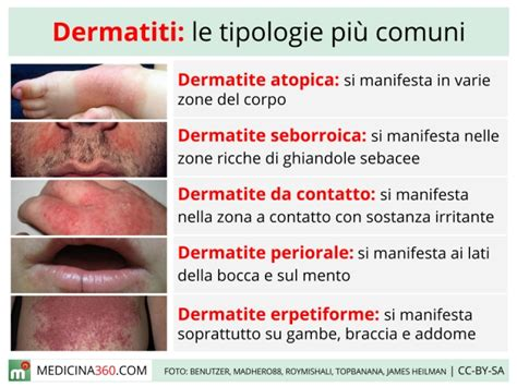 intossicazione alimentare sintomi cutanei dermatite cause sintomi cure e tipi atopica