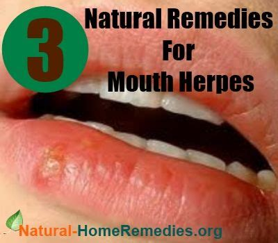 home remedies buzz http www