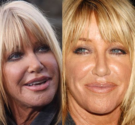 suzanne somers celebrity plastic surgery 24 did suzanne somers get plastic surgery before after
