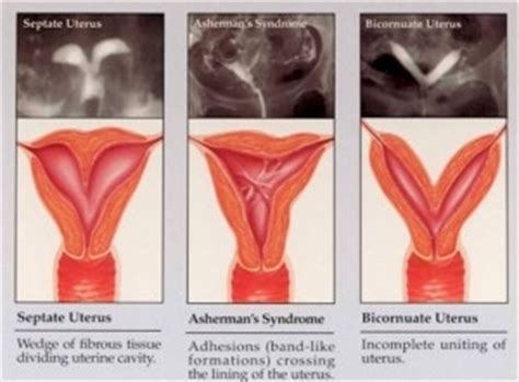 can c section cause infertility image gallery septate uterus