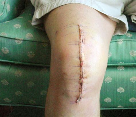 knee surgery knee revision surgery