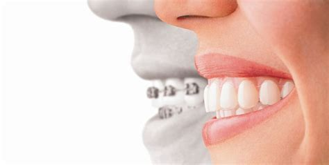 couch orthodontics what you didn t know about invisalign thousand oaks dentist