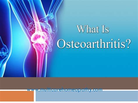 best homeopathic medicines list of 6 best homeopathic medicines for osteoarthritis
