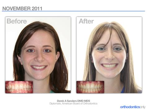 before and after miami smiles 2011 before after orthodontics only