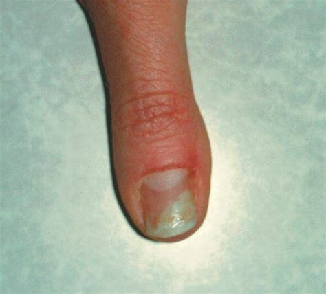 Fingernail Infection Pictures