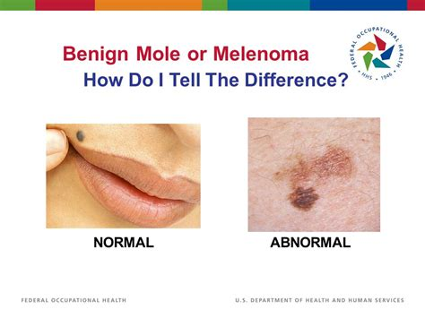 differences between malignant melanoma and a normal mole foh presents skin cancer ppt download