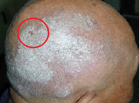remedios naturales para psoriasis cuero cabelludo remedios caseros para la psoriasis capilar psoriasis en
