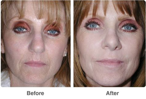light chemical peel benefits chemical peel before and after benefits of acid peel