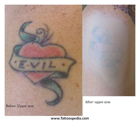 tattoo cover up utah tattoo cover up upper back 9