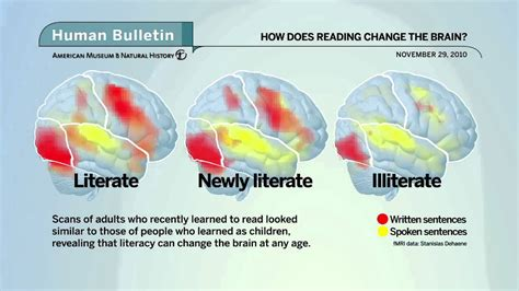 the better brain solution how to start now at any age to and prevent insulin resistance of the brain sharpen cognitive function and avoid memory loss books science bulletins how does reading change the brain